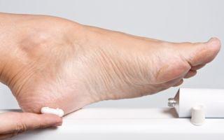 Обзор популярных кремов от натоптышей на ногах
