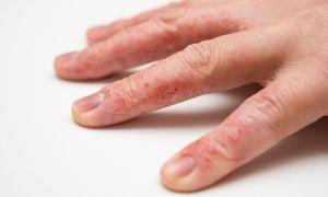 Обзор лучших кремов от сухости и трещин на руках с заживляющим эффектом