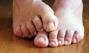 Кремы для лечения грибка ногтей на ногах
