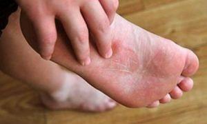 Популярные кремы от грибка на ногах: состав, показания, схема применения