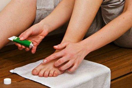 нанесение противогрибкового крема